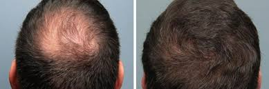 male before and after hairloss